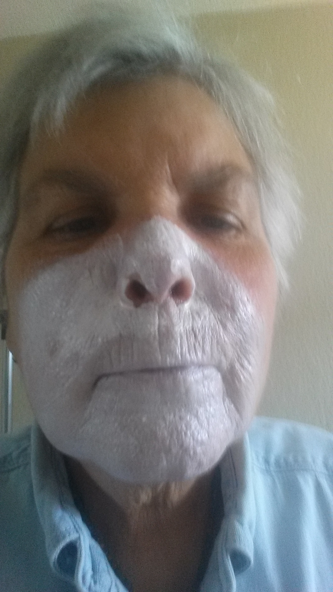 Metronidazole For Swollen Face